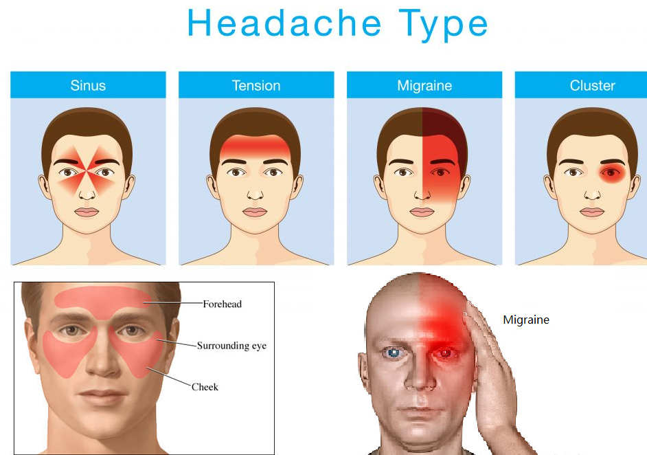 How do I get rid of a tension headache without taking any medication?